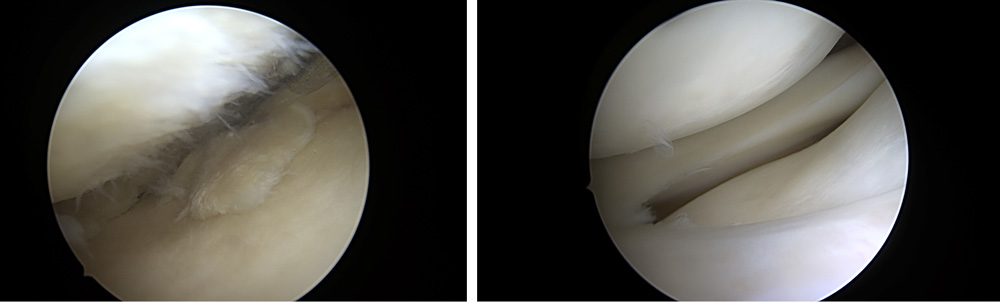 Meniskusverletzung vor und nach der Operation
